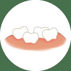 危害|奉上超实用儿童牙齿保护攻略宝宝蛀牙危害大