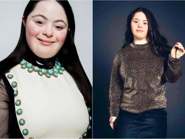 原创 唐氏综合症模特代言GUCCI彩妆,上VOGUE杂志,我更喜欢她不穿古驰的样子