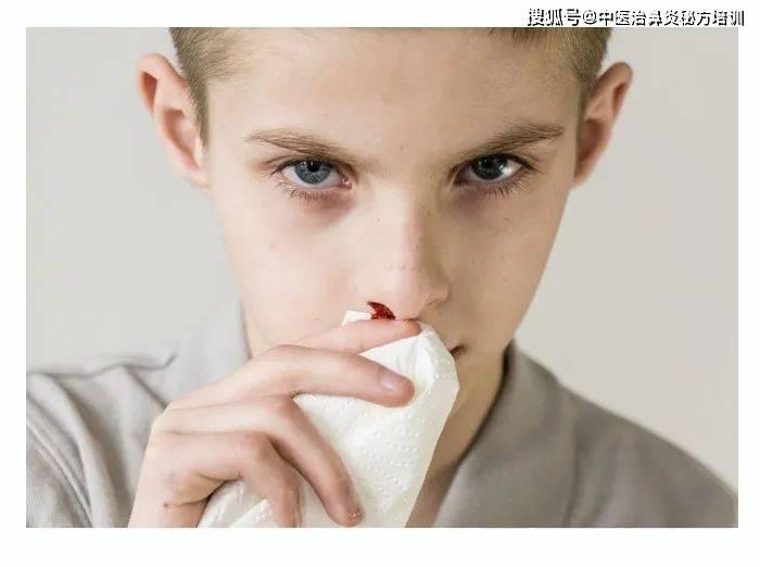 <font color='#FF6633'>【鼻子好了】鼻炎加盟分享:慢性鼻</font>