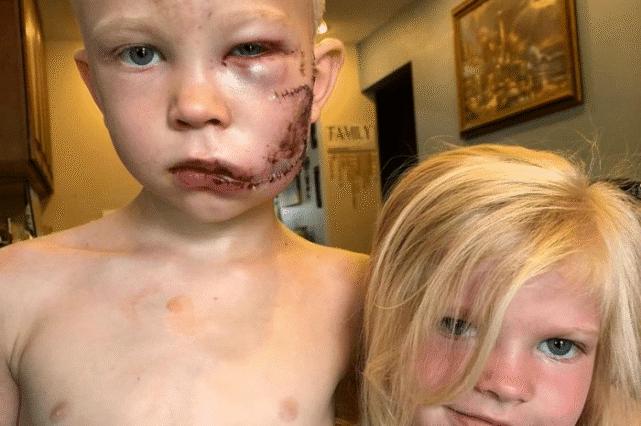 安妮·海瑟薇和更多明星称赞6岁的男孩保护妹妹免受恶狗的伤害