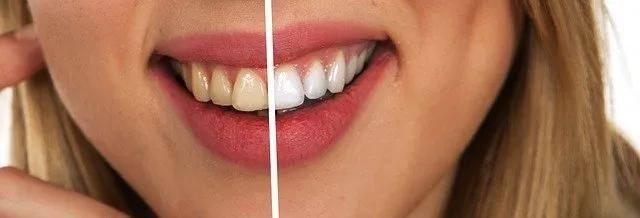 为什么每天认真刷牙,还是黄黄的,牙膏究竟该怎么选?丨口腔专题