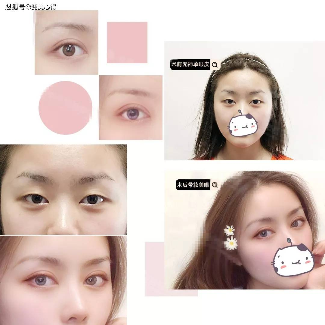 开扇形双眼皮案例照片