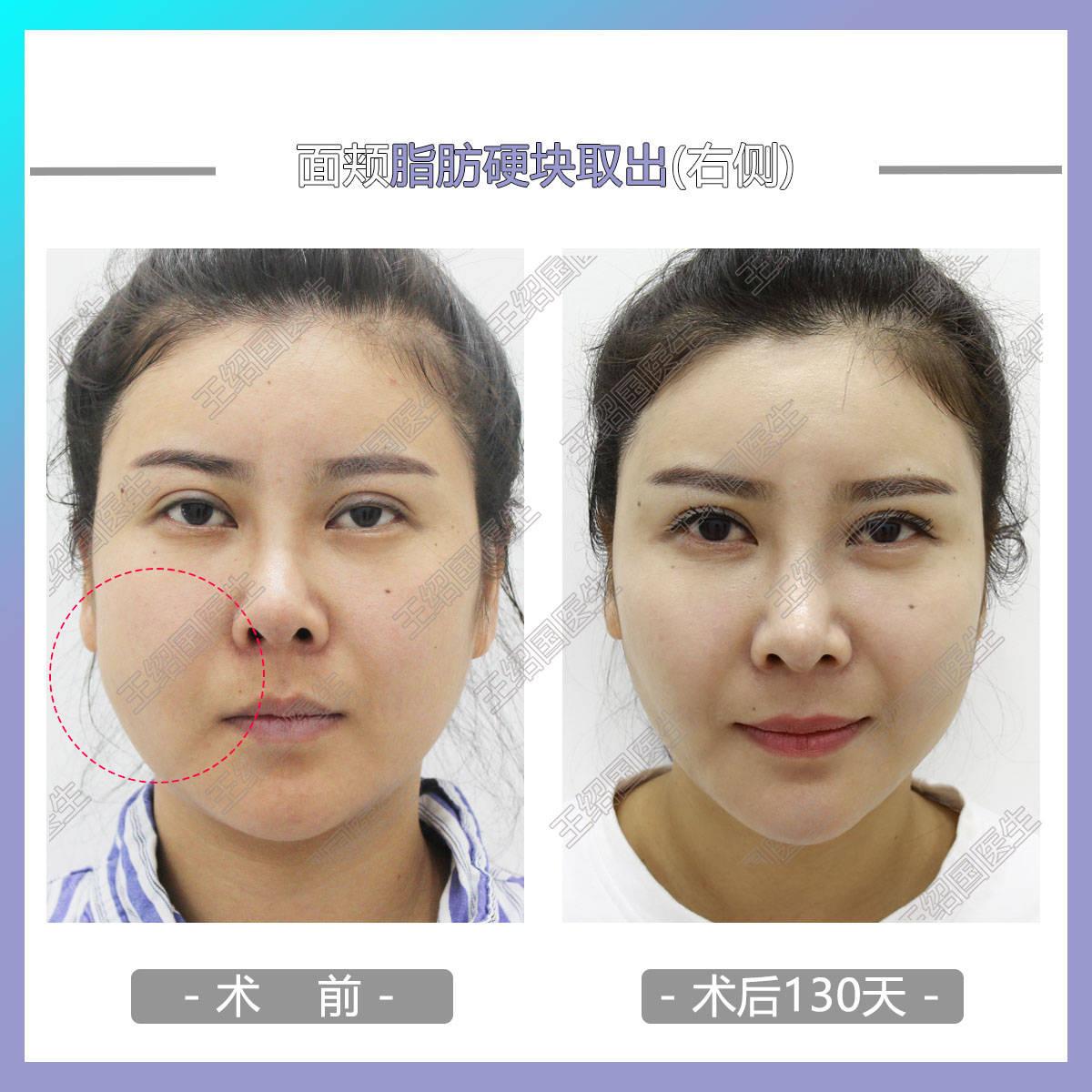 面部脂肪填充4天图片