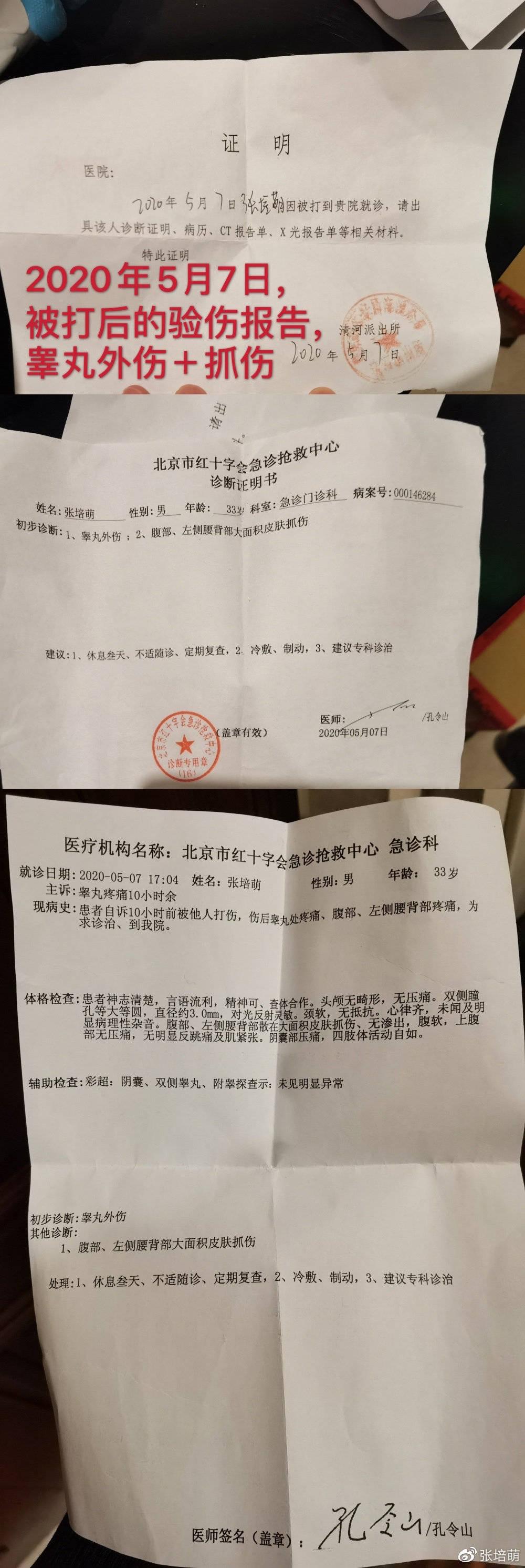 张培萌自曝被妻抓伤睾丸扔菜刀 婚前曾被提醒别做接盘侠