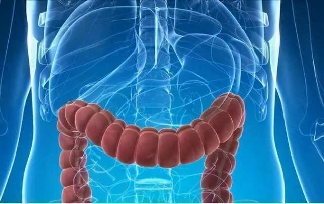 3天1次大便与1天3次大便,哪个是大肠癌?出现两种异常要当心