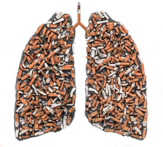 肺癌早期毫无征兆?医生提醒:上半身4个信号,可惜很多人不注意
