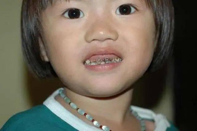 """2岁娃满嘴""""小黑牙"""",罪魁祸首是睡前的一种坏习惯,你别疏忽了"""