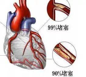 """一个心脏猝死者的警示:导致死亡的不全是躯体疾病,还有健康""""愚昧"""""""