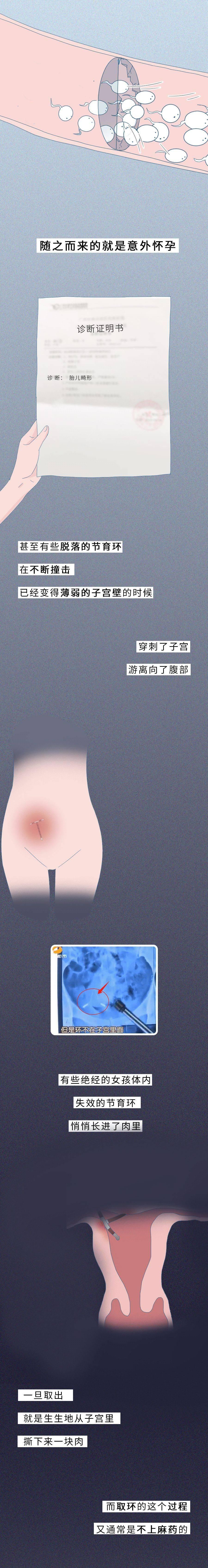 """一张图告诉你""""节育环""""在女性体内的20年,没人能笑着看完"""