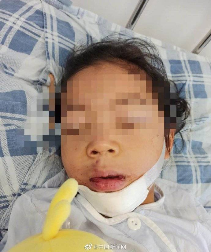 教育局回应女童被锁幼儿园后坠楼重伤:园方有重大责任