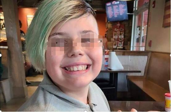 美国10岁男孩被圣诞装饰品弄伤了食指