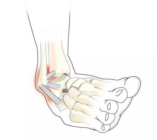 瑜伽拉伸不是拉韧带,韧带拉伤后果很严重!