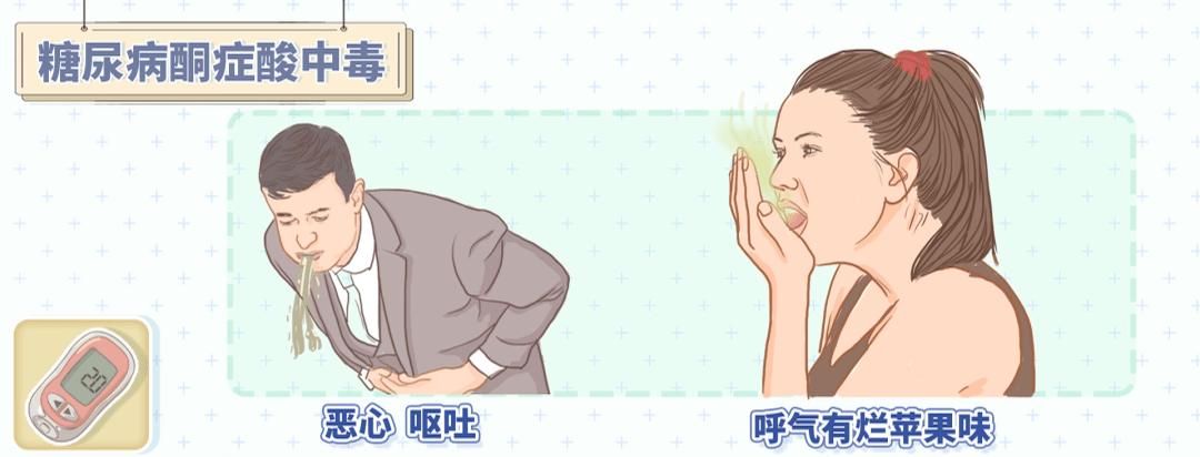 22岁女子喝奶茶被送进ICU!糖尿病患者,千万警惕这3种急性并发症!