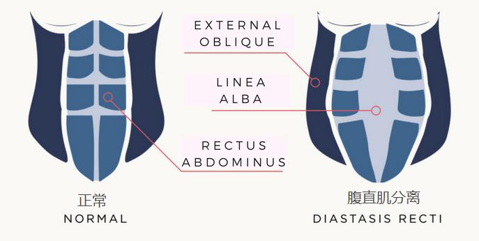 腹直肌分离恢复训练动作,什么是腹直肌分离插图(1)