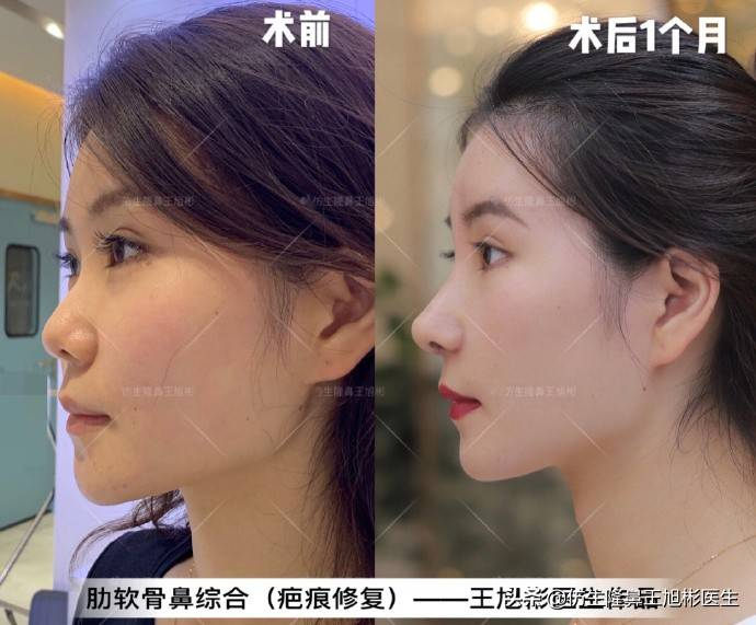 鼻头变小多少钱(缩小鼻子手术安全吗)插图(8)