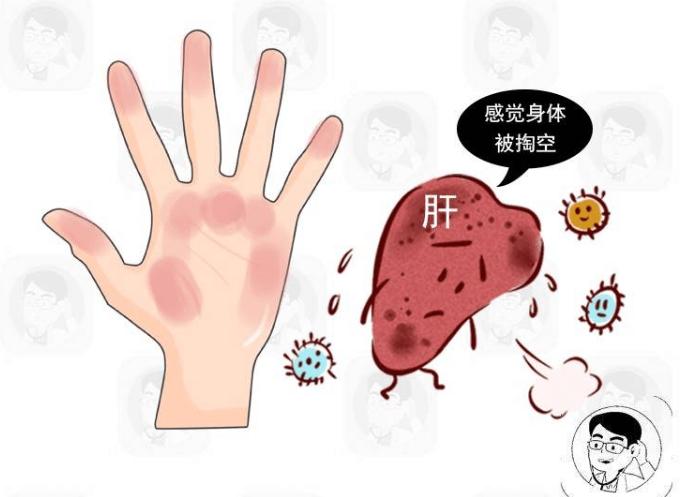 体内有癌,手往往有2种异常,如果全占,尽快排查这种癌症!