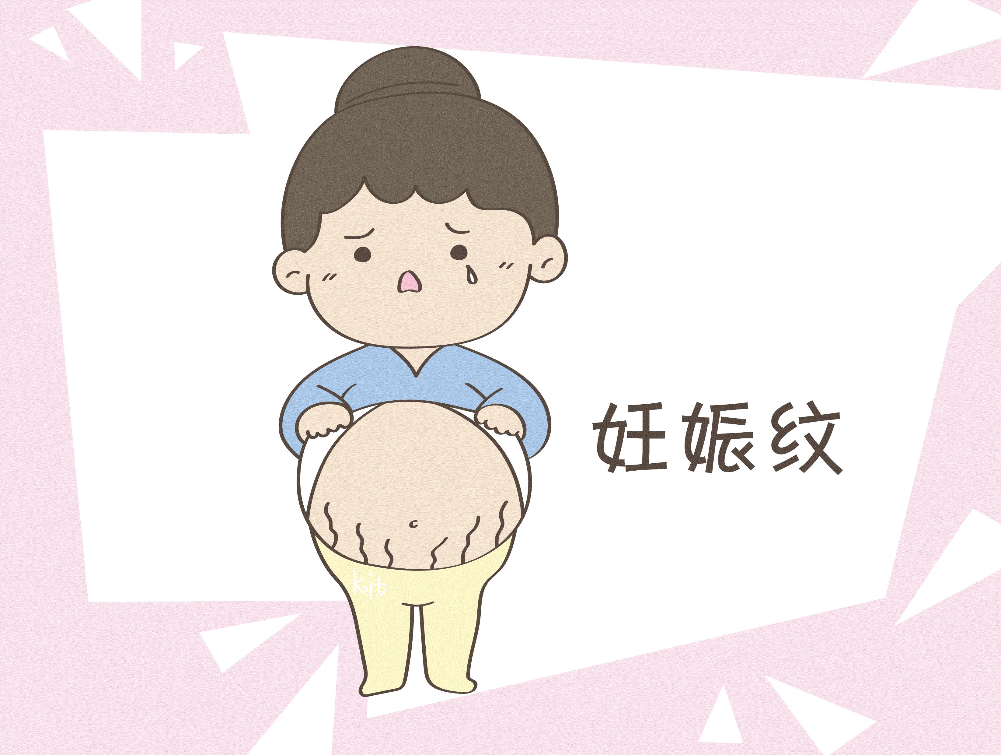 妊娠纹不是所有人都有,有这些表现的女性,孕期少添烦恼