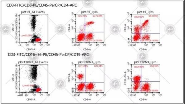 长沙中科白癜风病医院T淋巴细胞亚群检测新技术发布