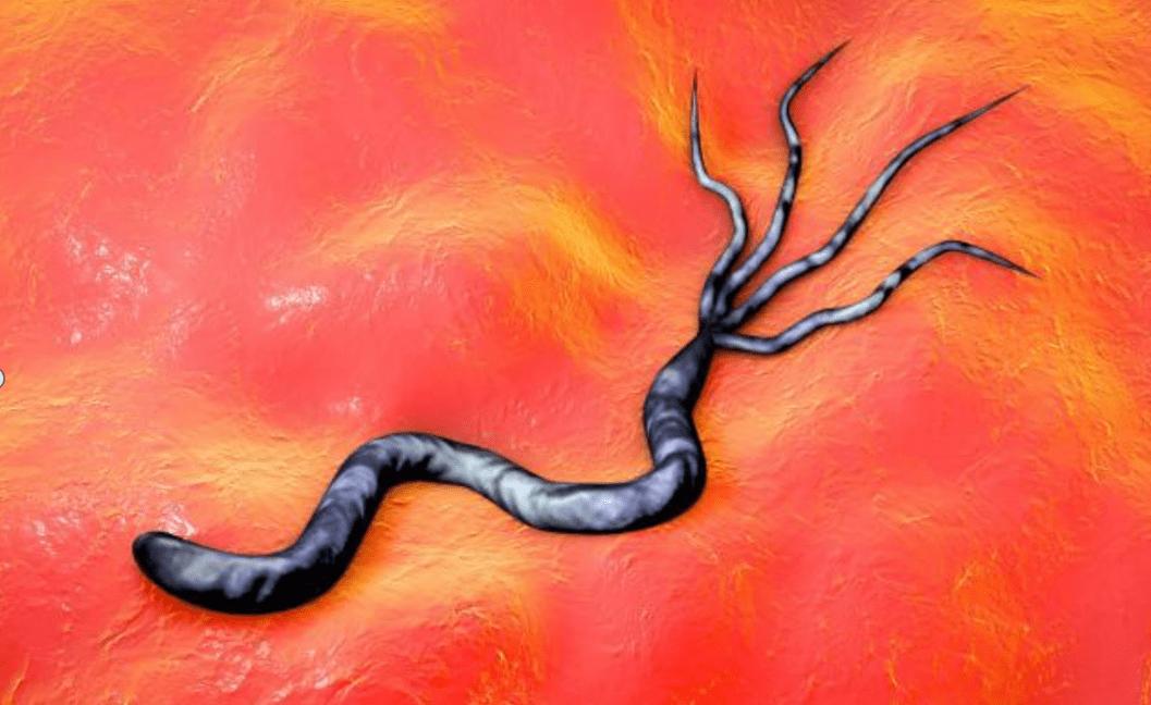 Bụng chứa nhiều vi khuẩn gây ung thư dạ dày sẽ gây ra 4 triệu chứng khó chịu, đừng bỏ qua kẻo hối hận - Ảnh 2.