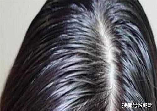 满堂彩官网使头皮恒久油腻湿润
