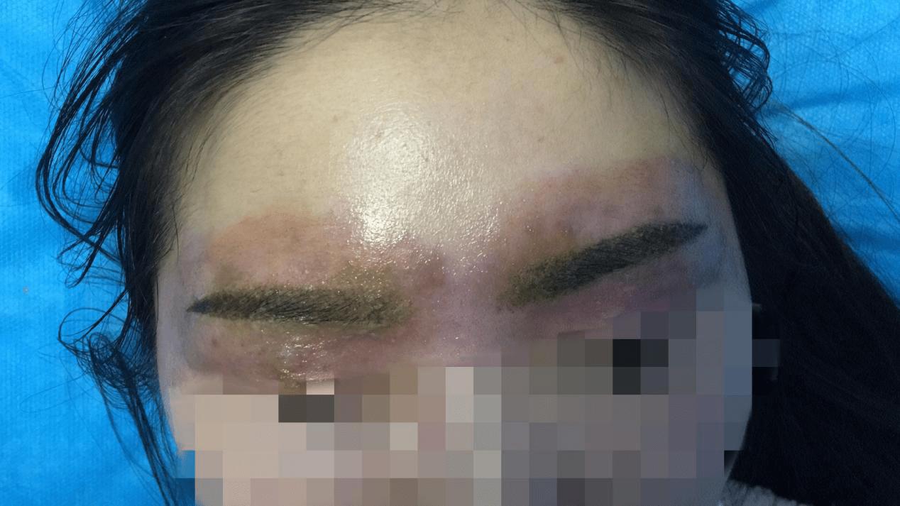 """尴尬!长沙22岁美女老板纹眉后,发痒红肿变""""关公""""!专家:要变美也要防过敏"""