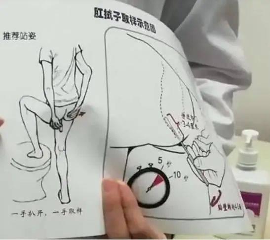 """新冠检测新增肛拭子,要被捅""""菊花""""……哪些人要做?用啥姿势,有痔疮影响检测吗?"""