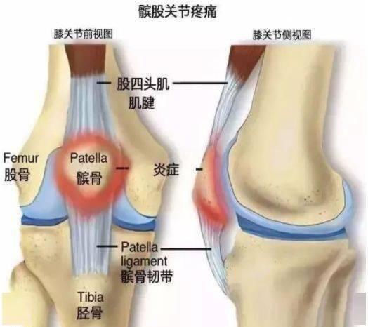 瑜伽老师常用的<避免膝盖疼痛>的引导词,竟然都没说到点上!