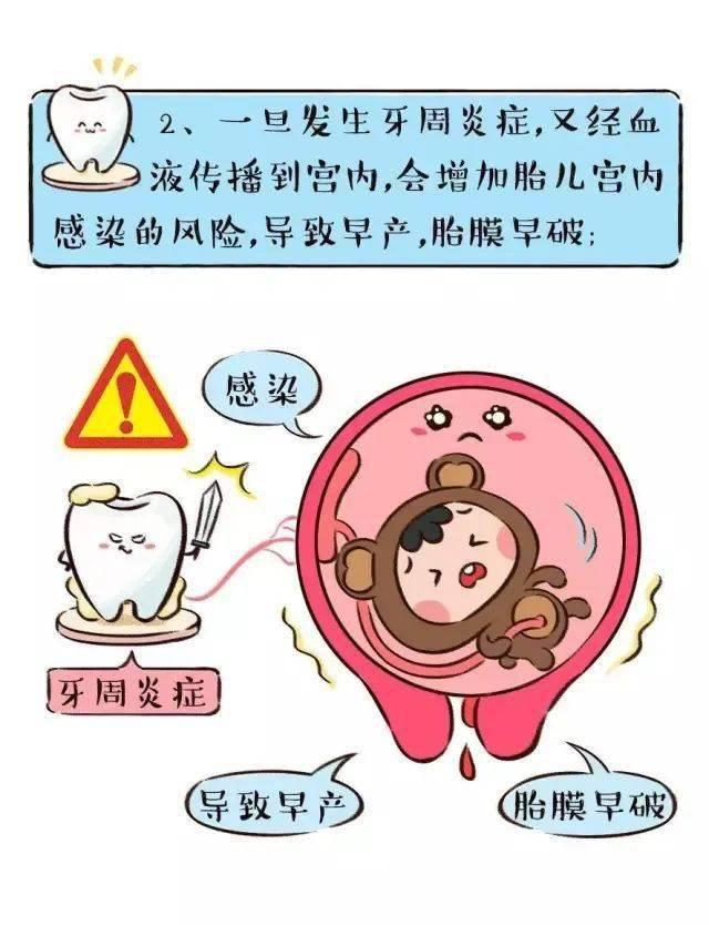 【口腔科普】准备怀孕前也要做口腔检查,你知道吗?  第4张