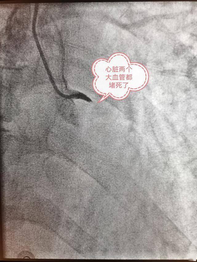 心脏三个大血管,52岁男子两个血管都丢失,手术台上心
