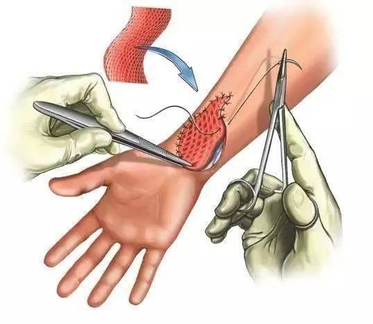 减轻痛苦,缩短病程——正确认识烧烫伤植皮
