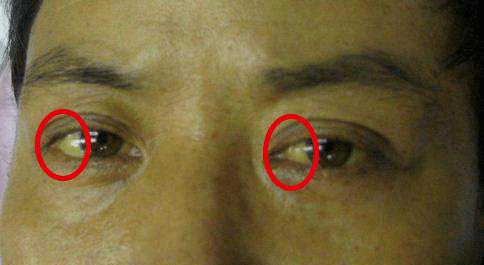 """一片=10贴眼膜!解救""""疲劳眼""""!25分钟蒸走干涩 、黑眼圈,还你少女明眸!"""