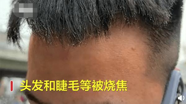 三星手机当街爆炸起火 女友哭诉:男友的长睫毛都烧没了的照片 - 3