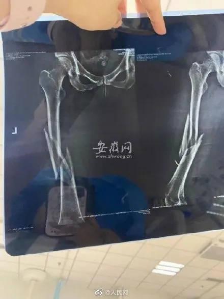花7600元上瑜伽课女子被教练压断腿!